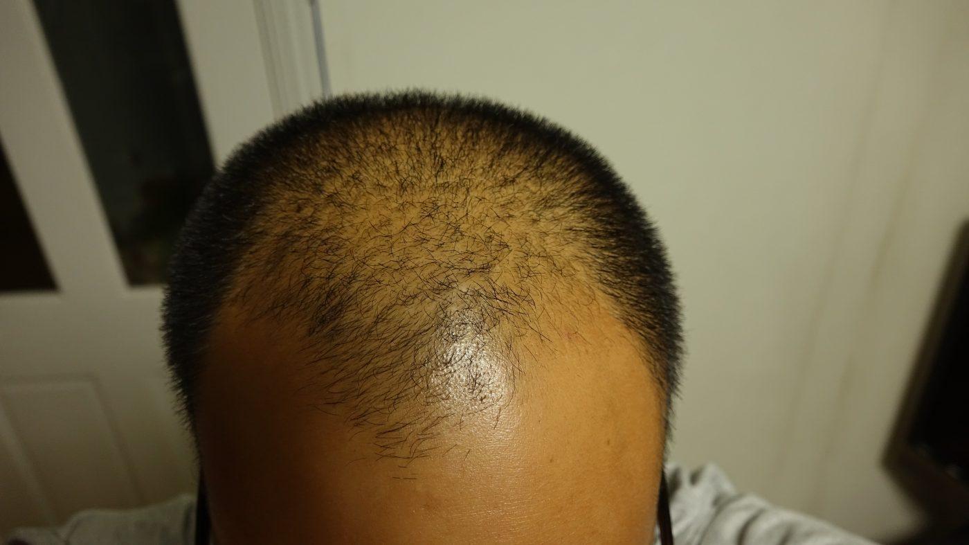 前回の頭髪の状態